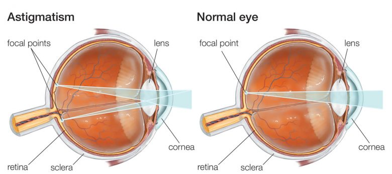 Graph showing astigmatism and normal eye